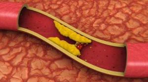 artery-cp-584.jpg